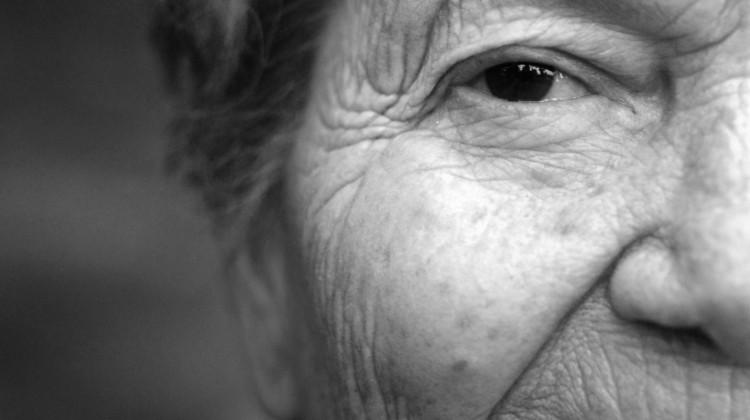 aging eyelashes