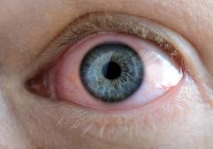 bimatoprost eye drop