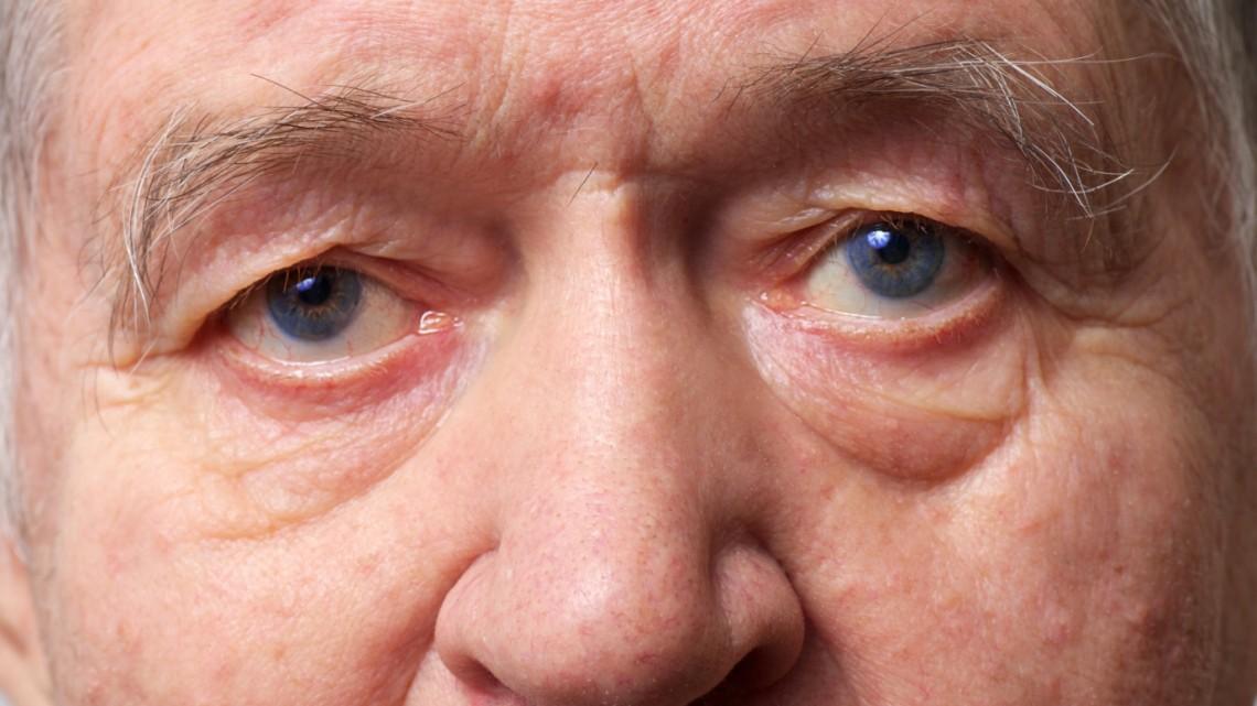 Почему глаза слезятся у пожилых людей