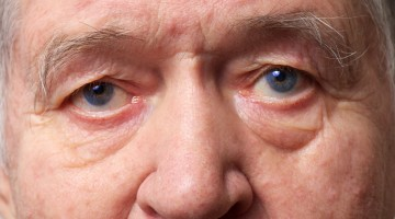 Common eye infections and their treatments