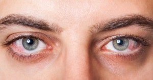 Eyelashes infections, their symptoms and treatments