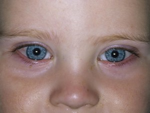 Common eye infections in newborns