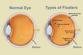 Natural Cure for Eye Floaters
