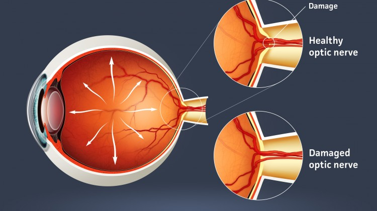 Bimatoprost ophthalmic solutions mechanism