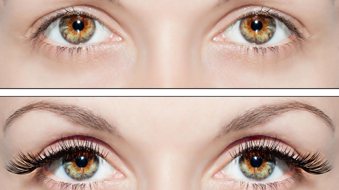 Careprost - An Eyelashes Enhancer