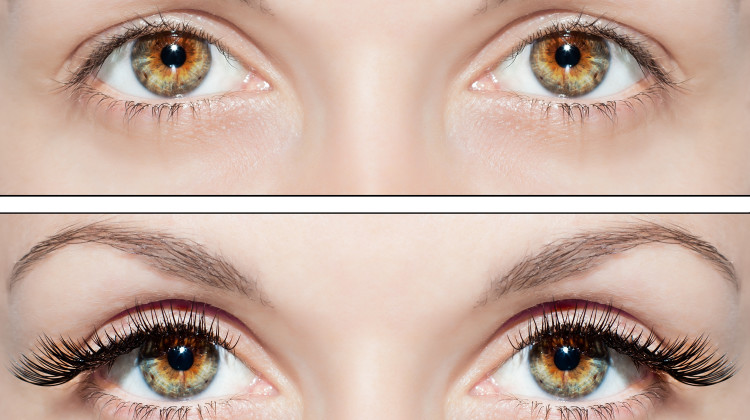 Careprost - An Eyelashes Enhancer