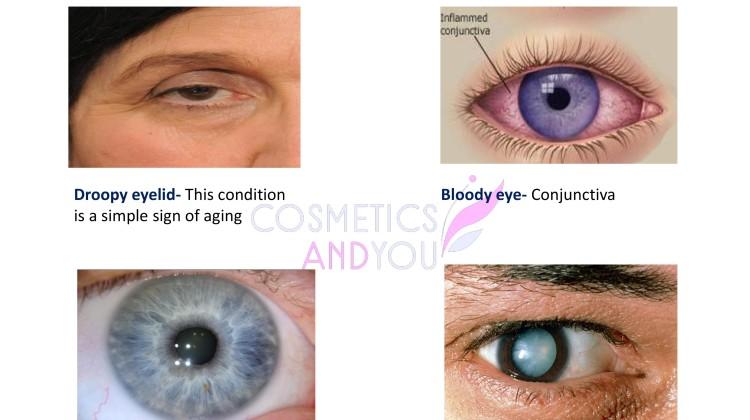 Eye Health-page-001