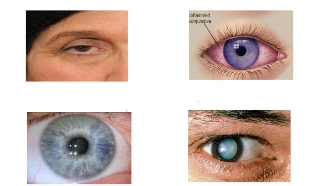 Eye-Health-page-001 new