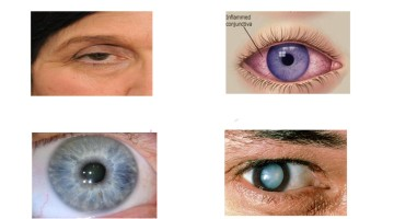 Eye-Health-page-001 new